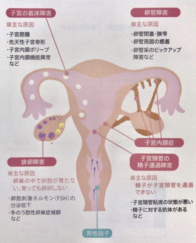 女性の不妊