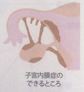子宮内膜症の図