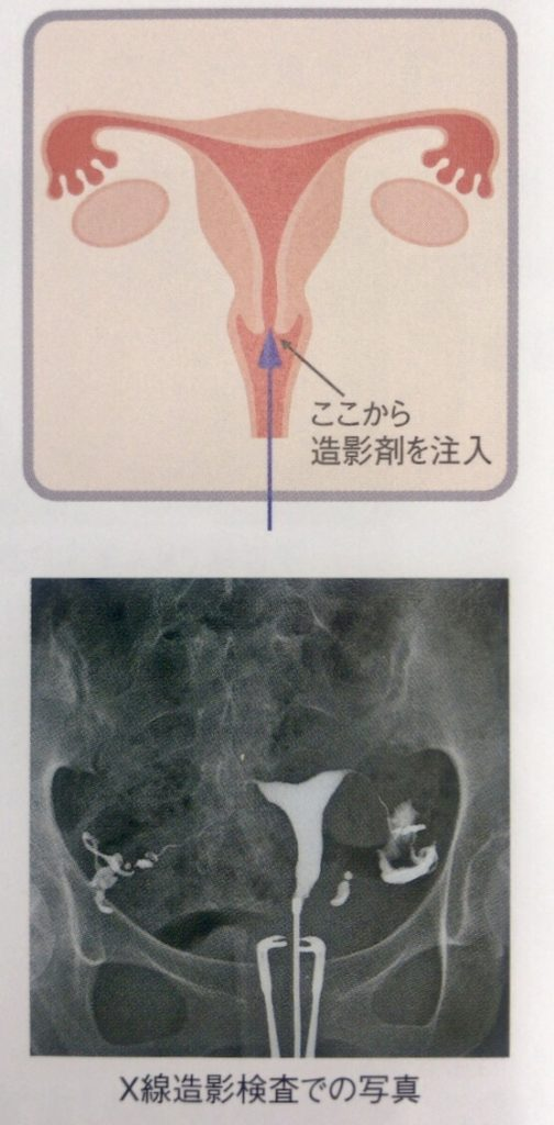 X線子宮卵管造影検査