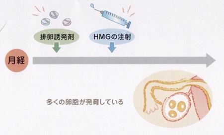 排卵誘発法
